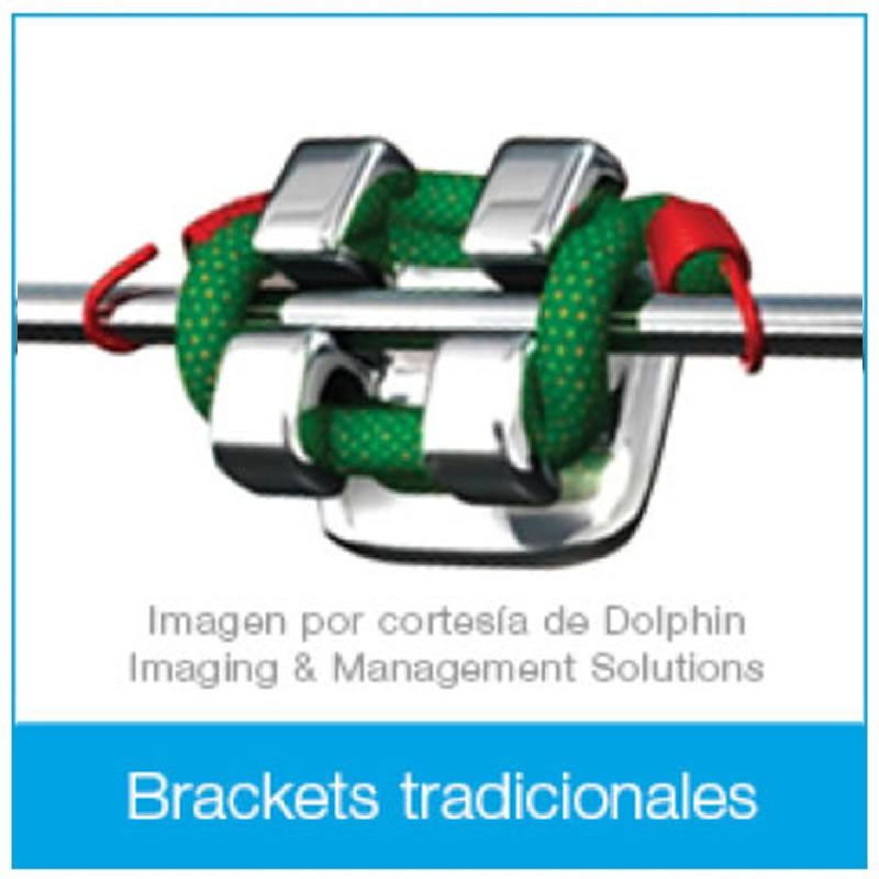 erwin-dental-brackets-tradicionales